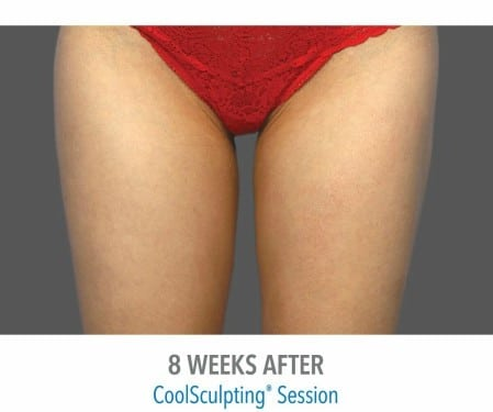 CoolSculpting 3