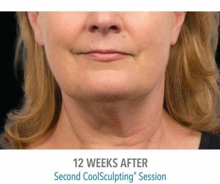 CoolSculpting 4