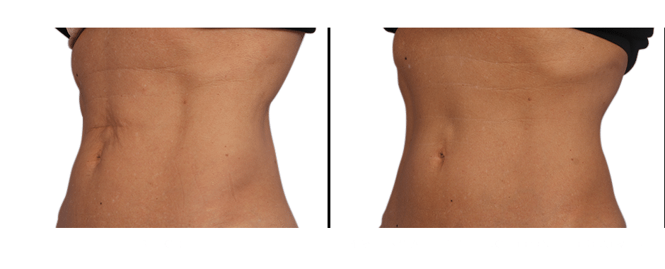 CoolSculpting near me Advanced Skin & Body