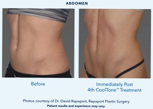 CoolTone and CoolSculpting provider in Bellevue