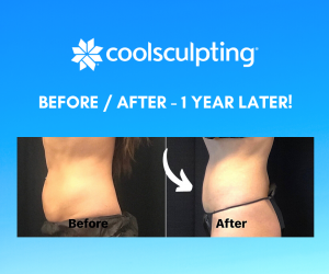 How does coolsculpting feel